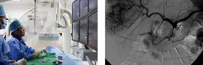 간동맥혈관촬영술