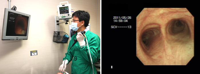 내시경 검사 사진